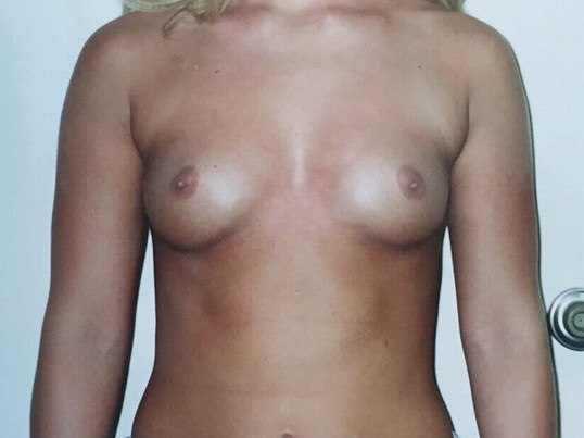 Before and After Implants Before