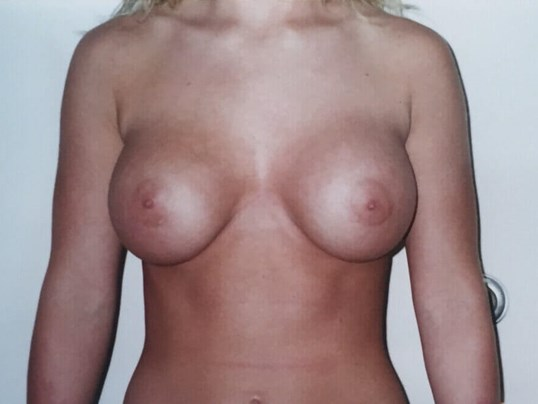 Before and After Implants After