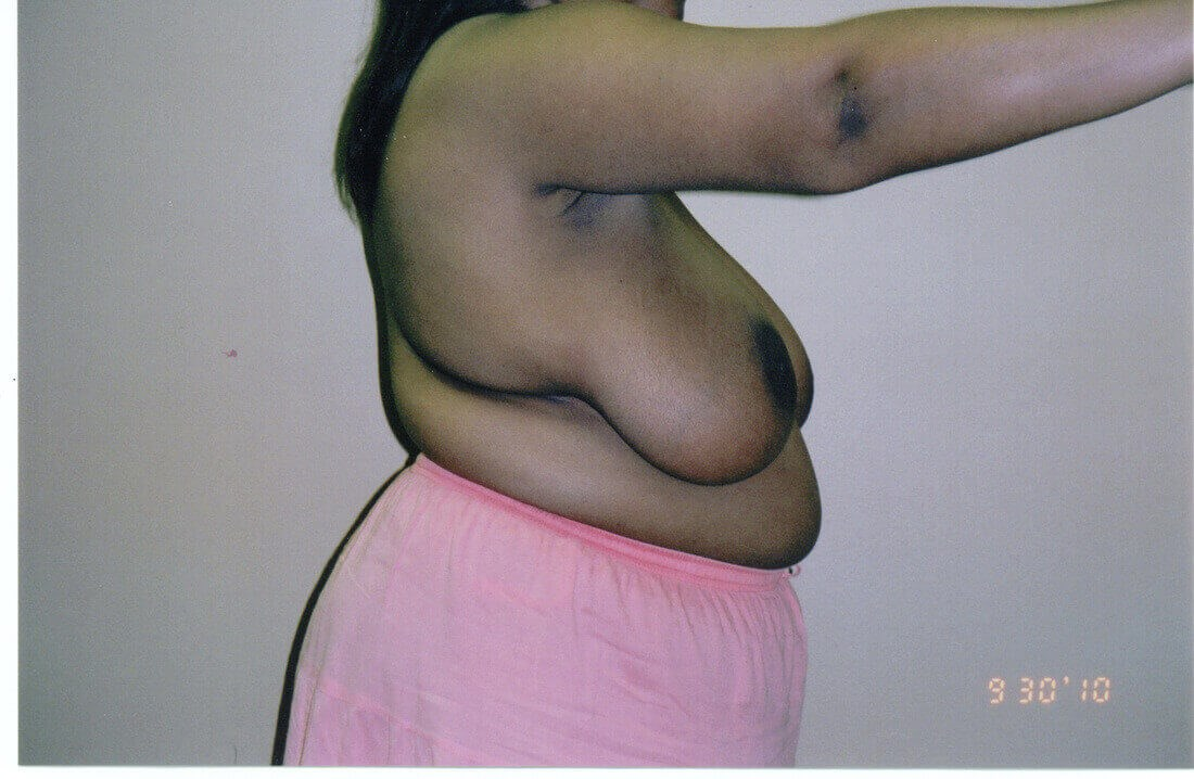 Breast Reduction Atlanta Before