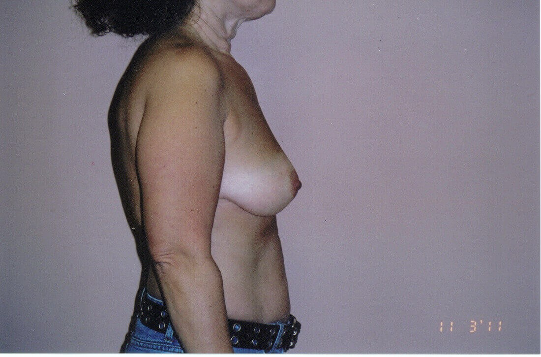 Breast lift side view Before