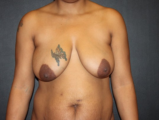 Breast Lift Before & After Before