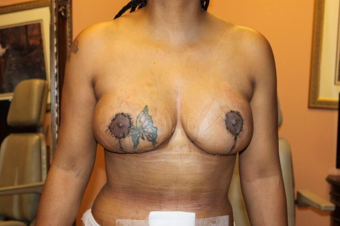 Breast Lift Before & After After