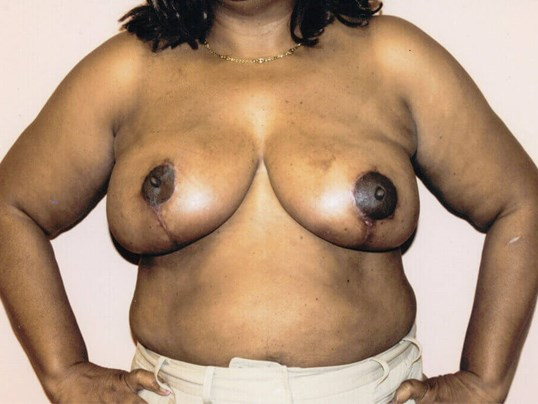 Breast Reduction in Atlanta After