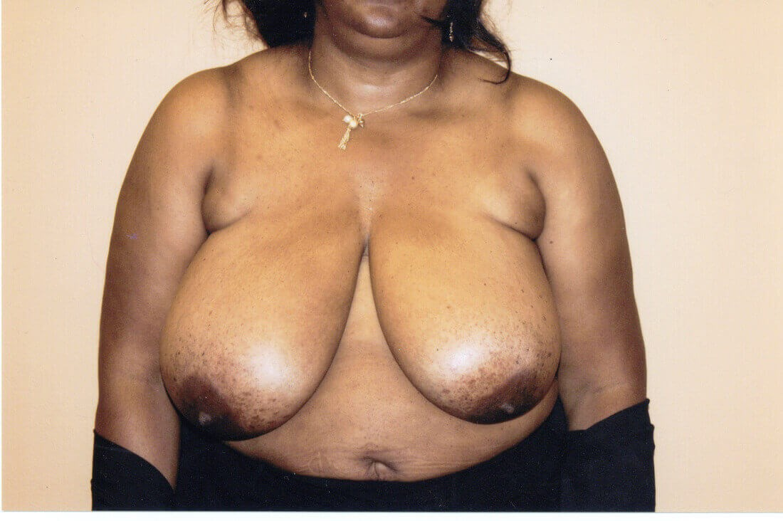 Breast Reduction in Atlanta Before