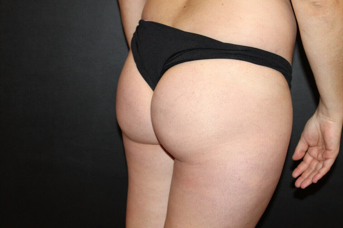 Brazilian butt lift Before