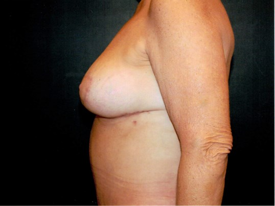 Breast lift side view After