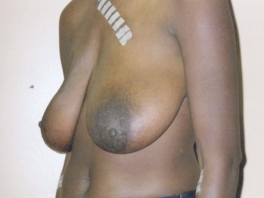 Breast lift oblique view Before