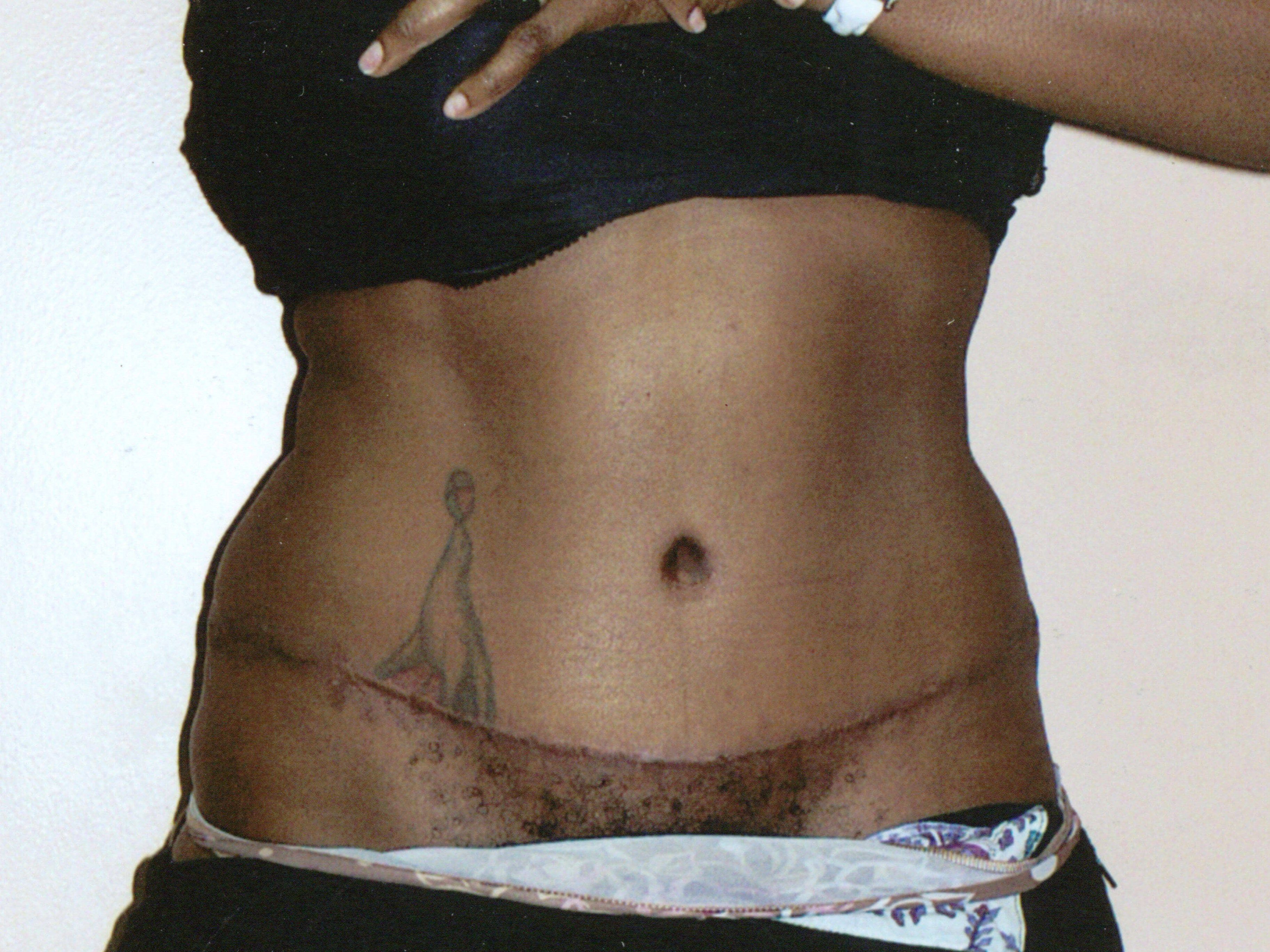 Tummy Tuck + Liposuction After