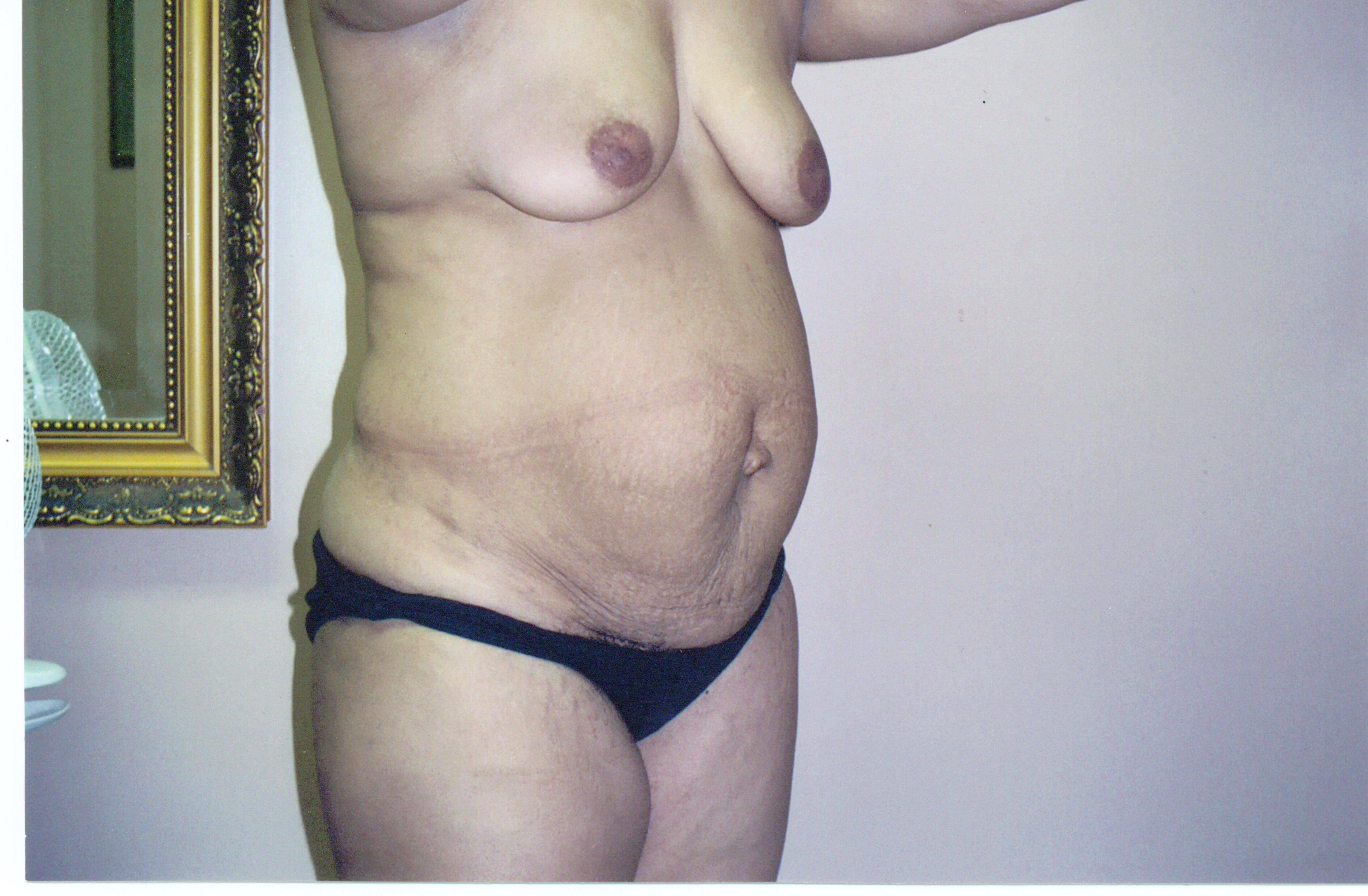 Tummy Tuck + Liposuction Before