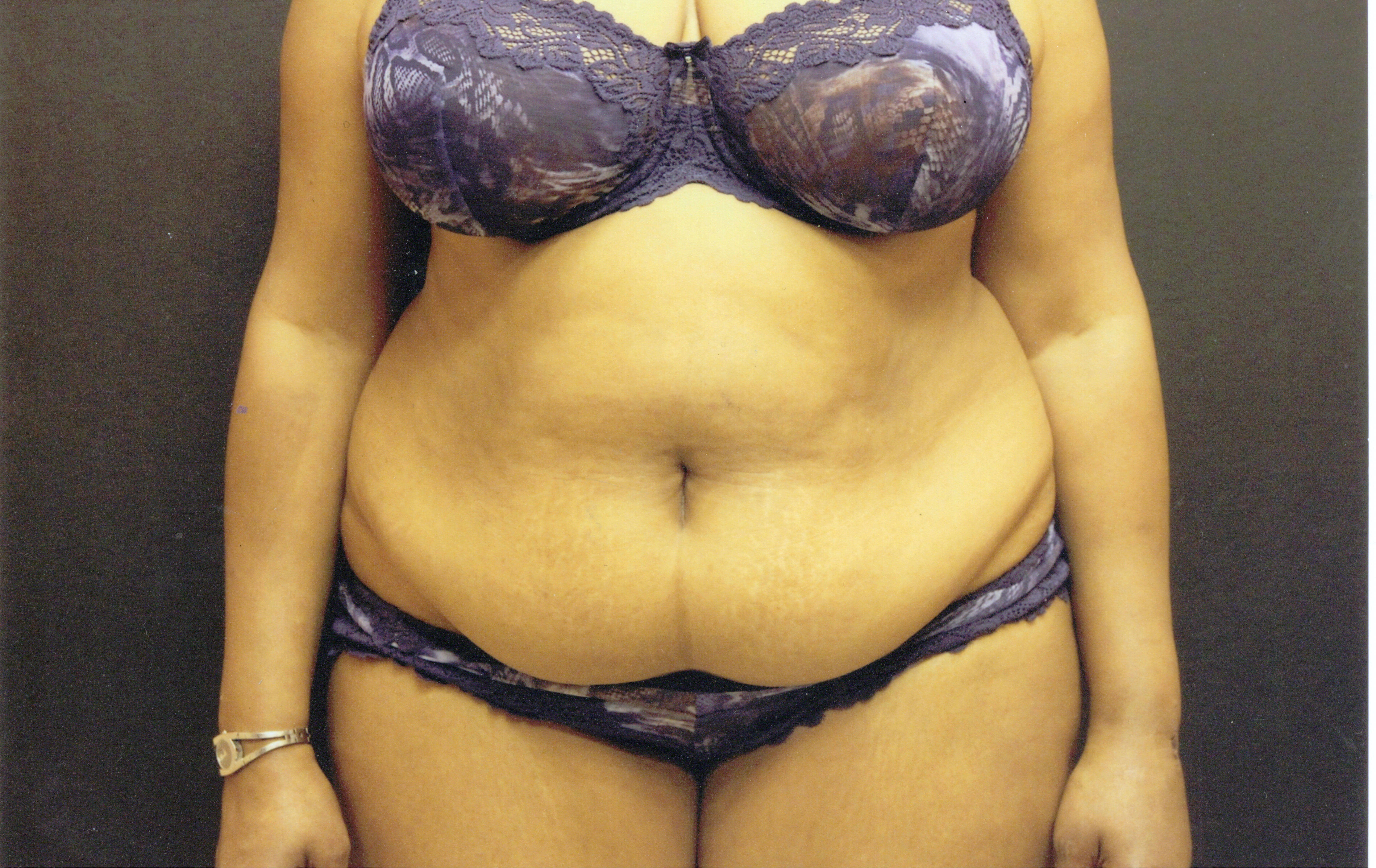 Tummy tuck front view Before