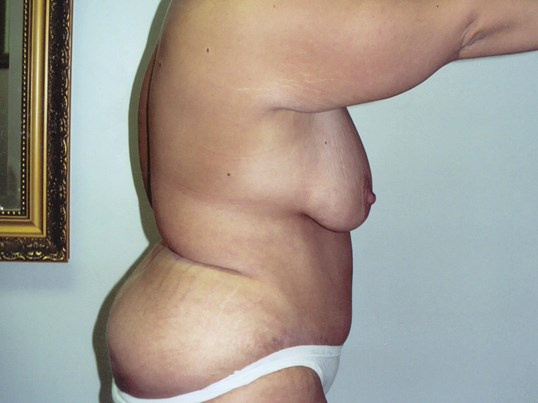 Tummy tuck side view right After