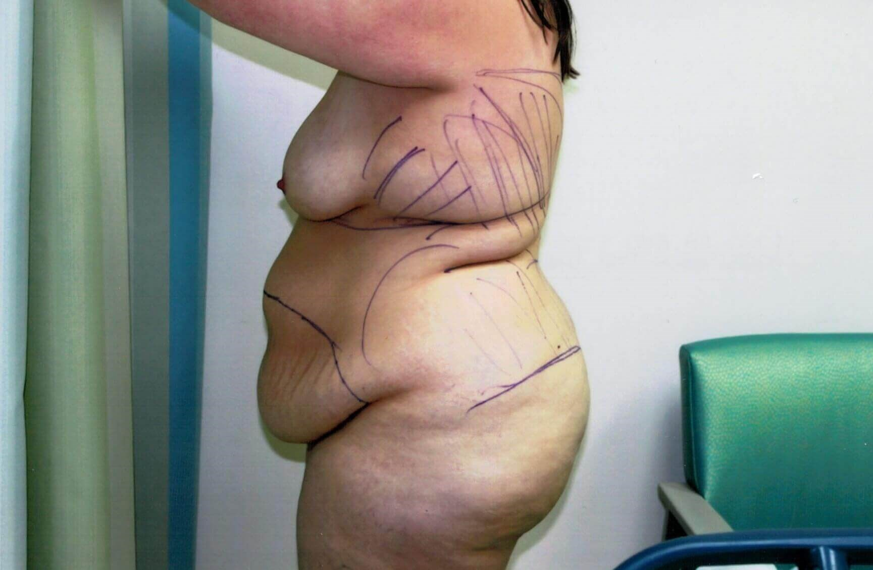 Tummy tuck after side view Before
