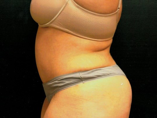 Tummy tuck after side view After