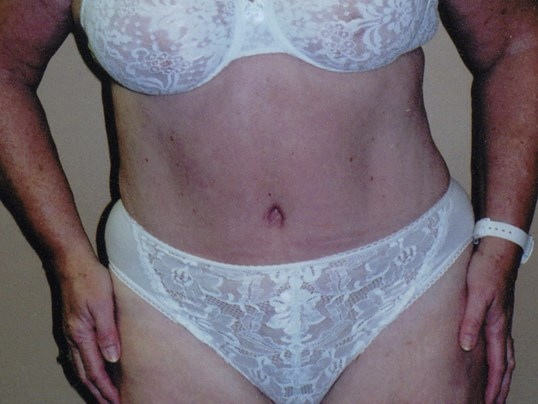 Tummy tuck front view After