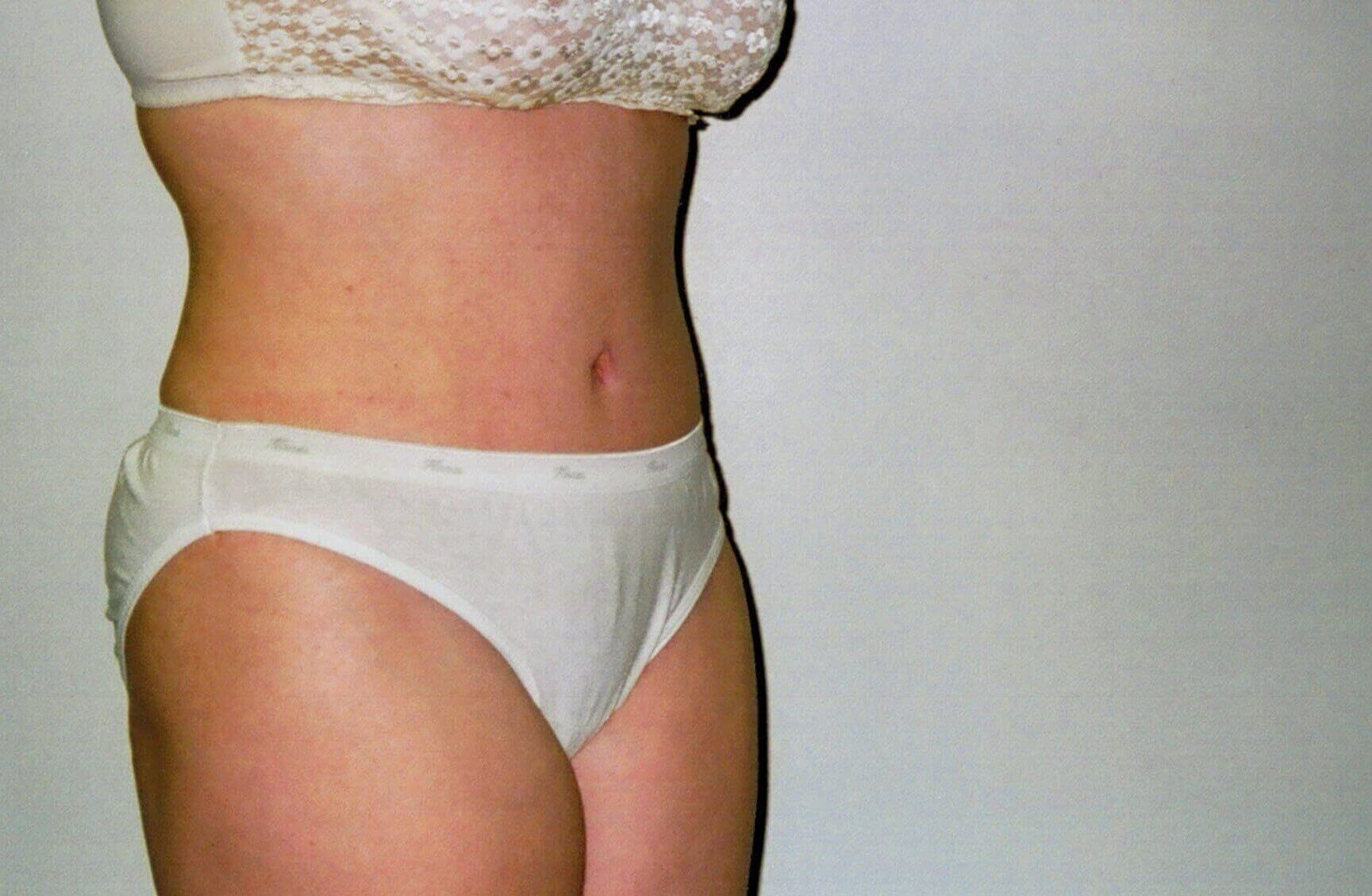 Tummy tuck oblique view After