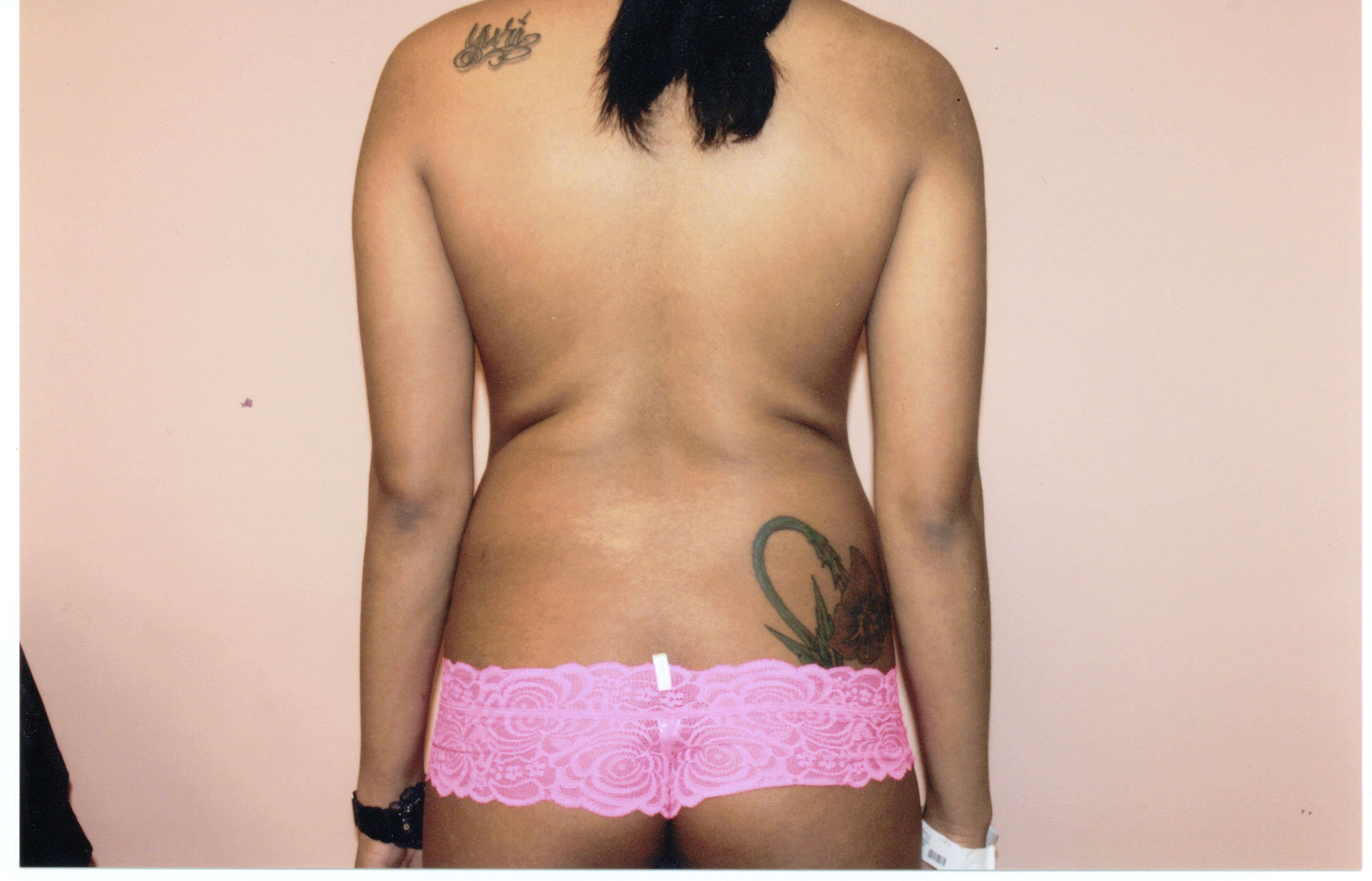 Liposuction of back,Tummy Tuck Before
