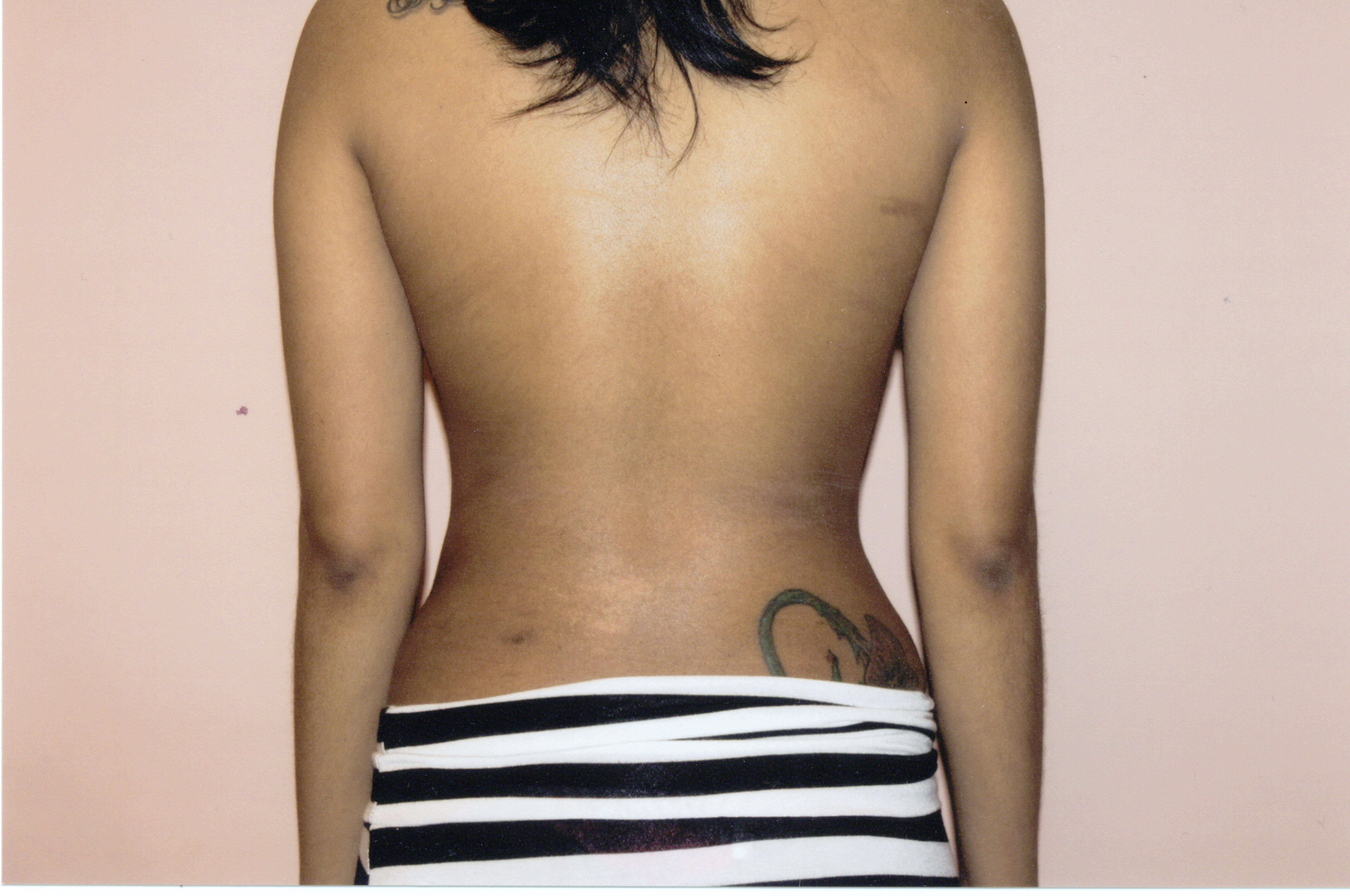 Liposuction of back,Tummy Tuck After