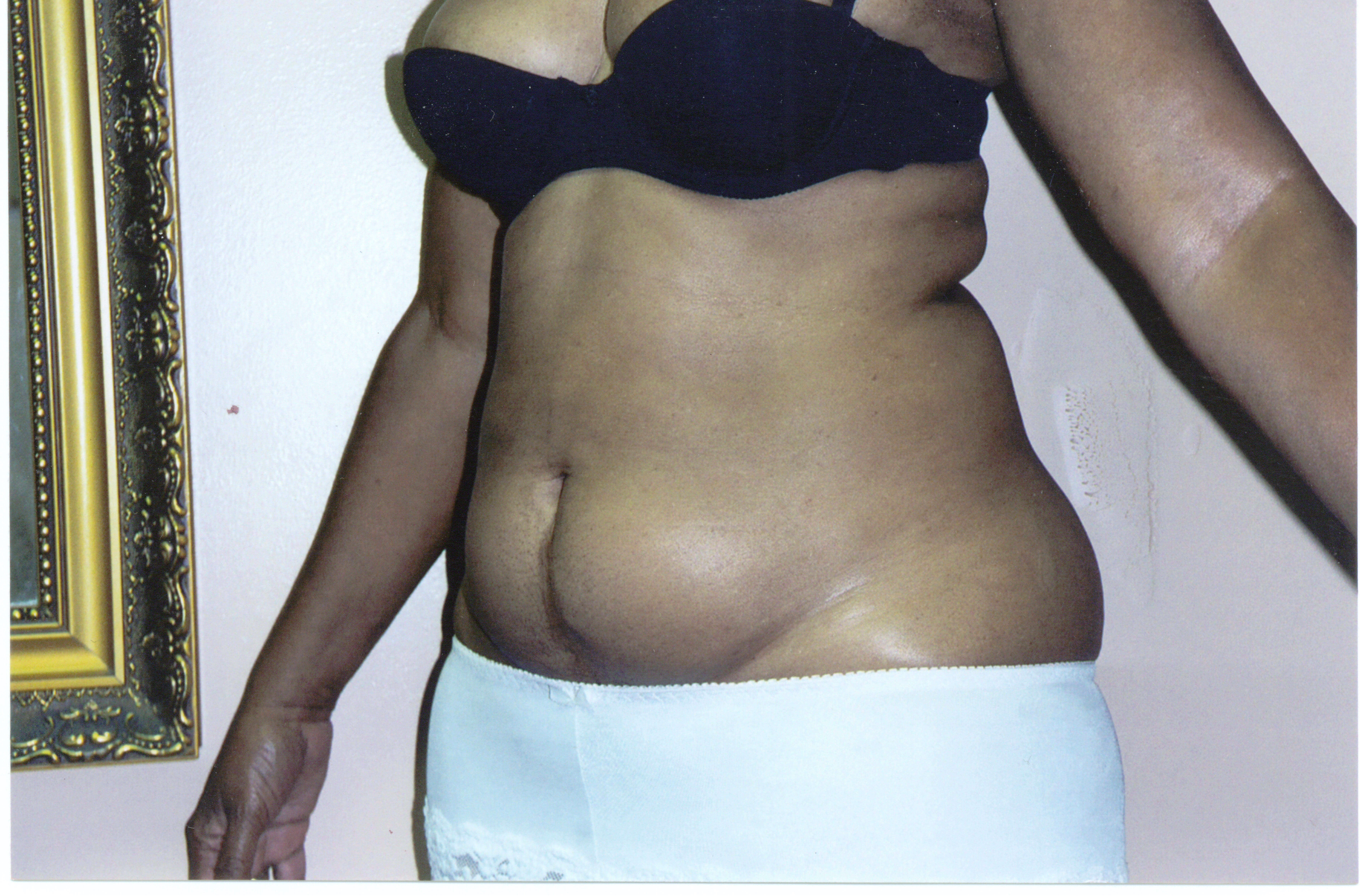 Liposuction oblique view Before