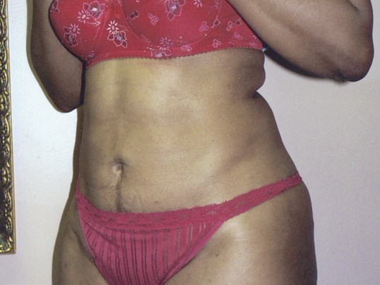 Liposuction oblique view After