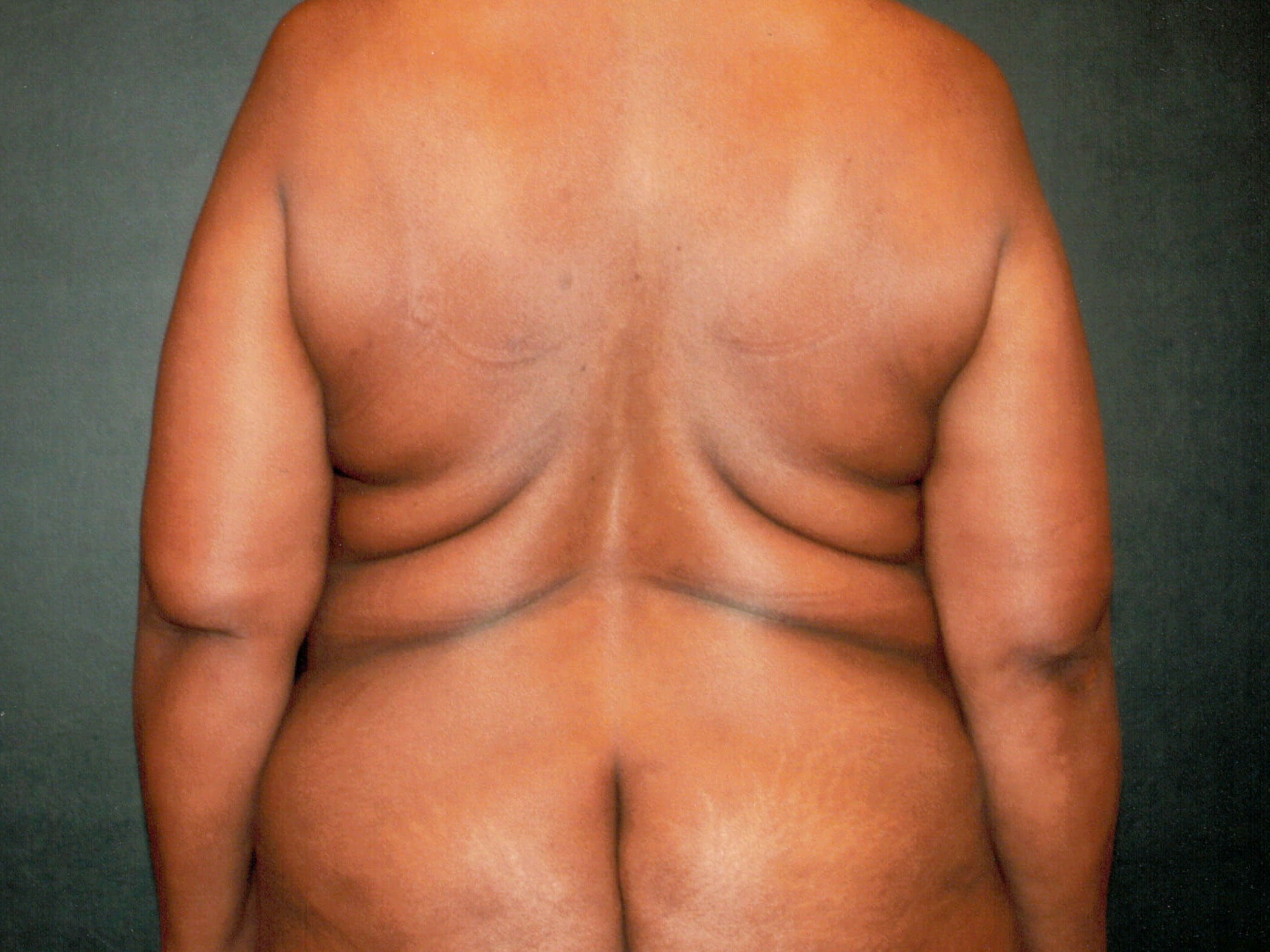 Lipo after gastric sleeve Before