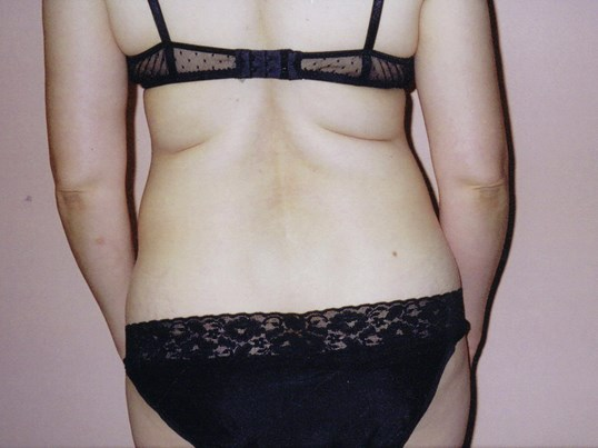 Liposuction, back view Before