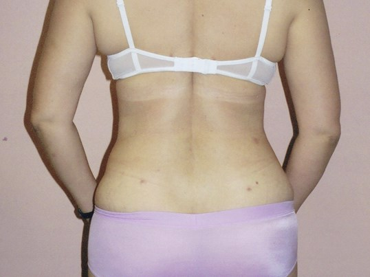 Liposuction, back view After