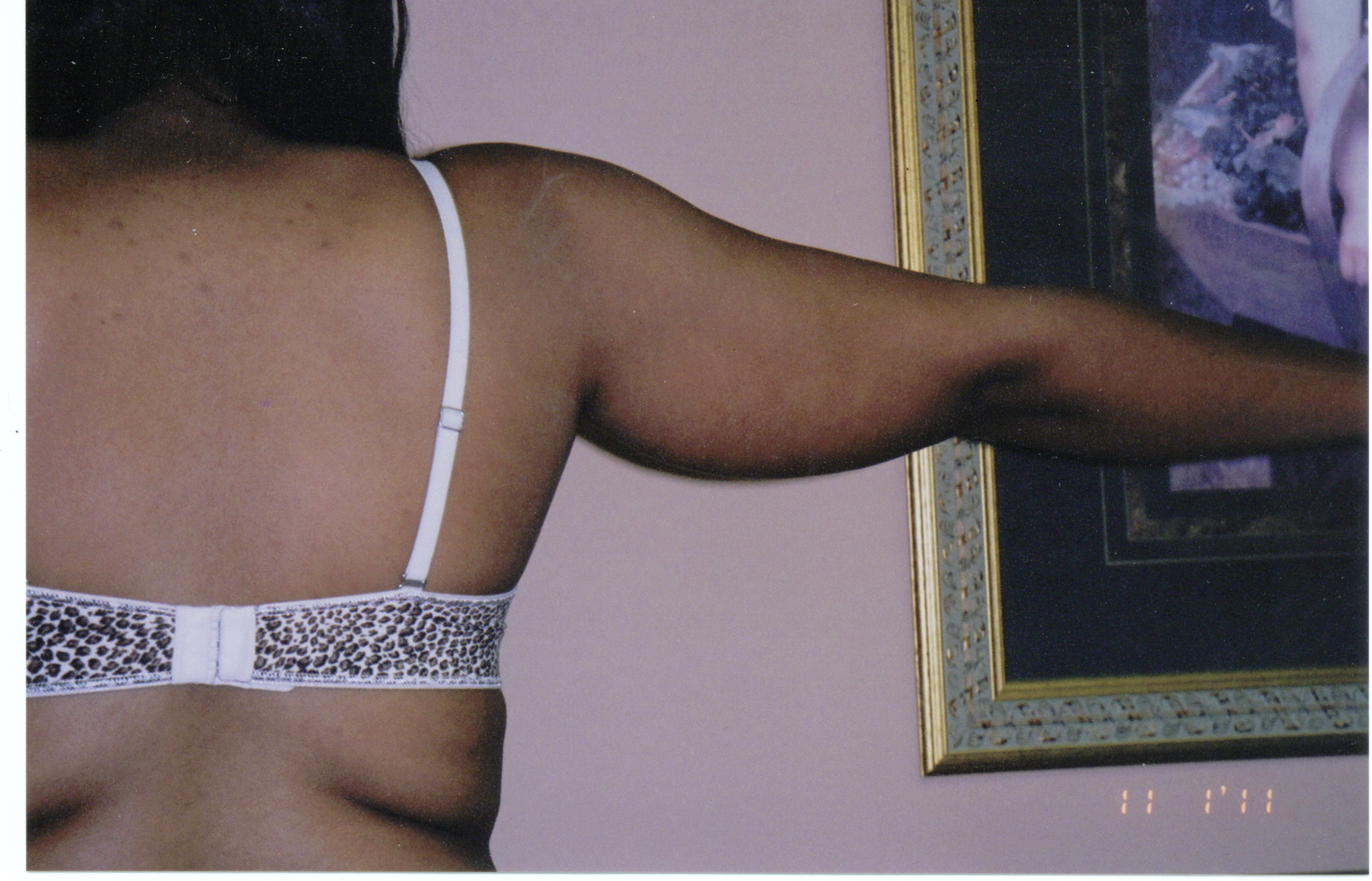 Liposuction of upper arms Before