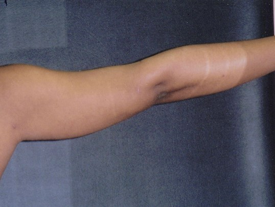 Liposuction of upper arms After
