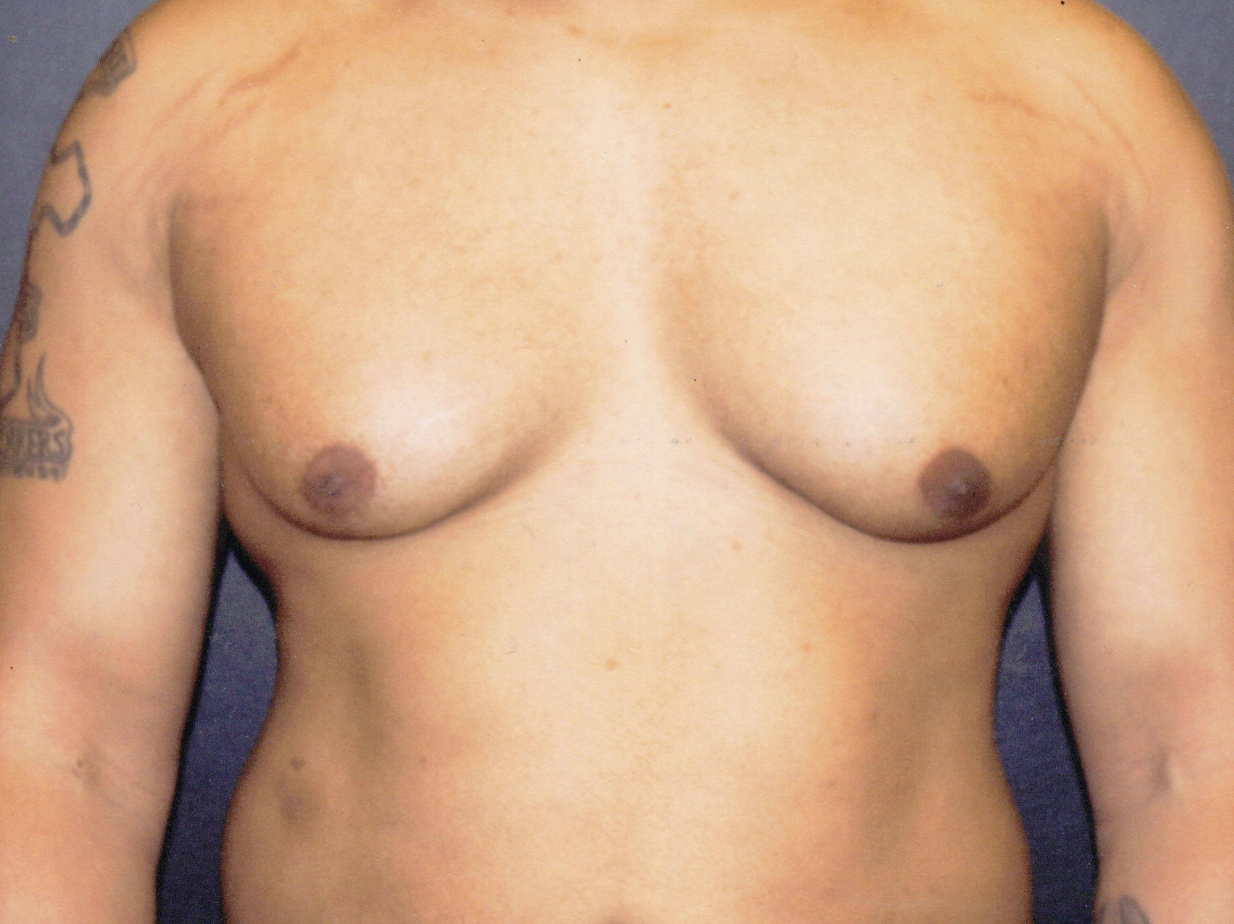 Liposuction of chest Before
