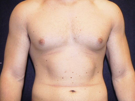 Liposuction chest front view Before