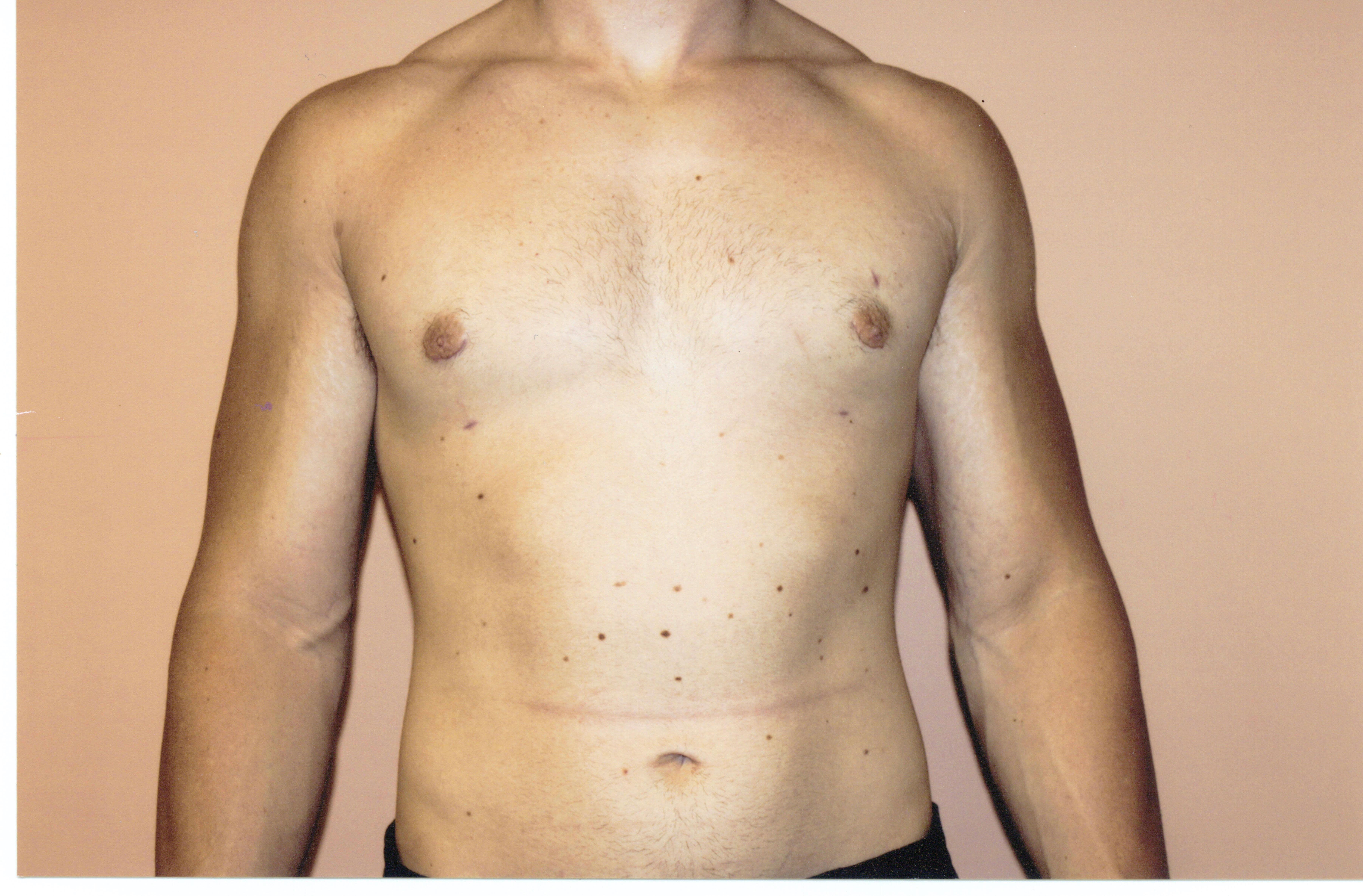 Liposuction chest front view After