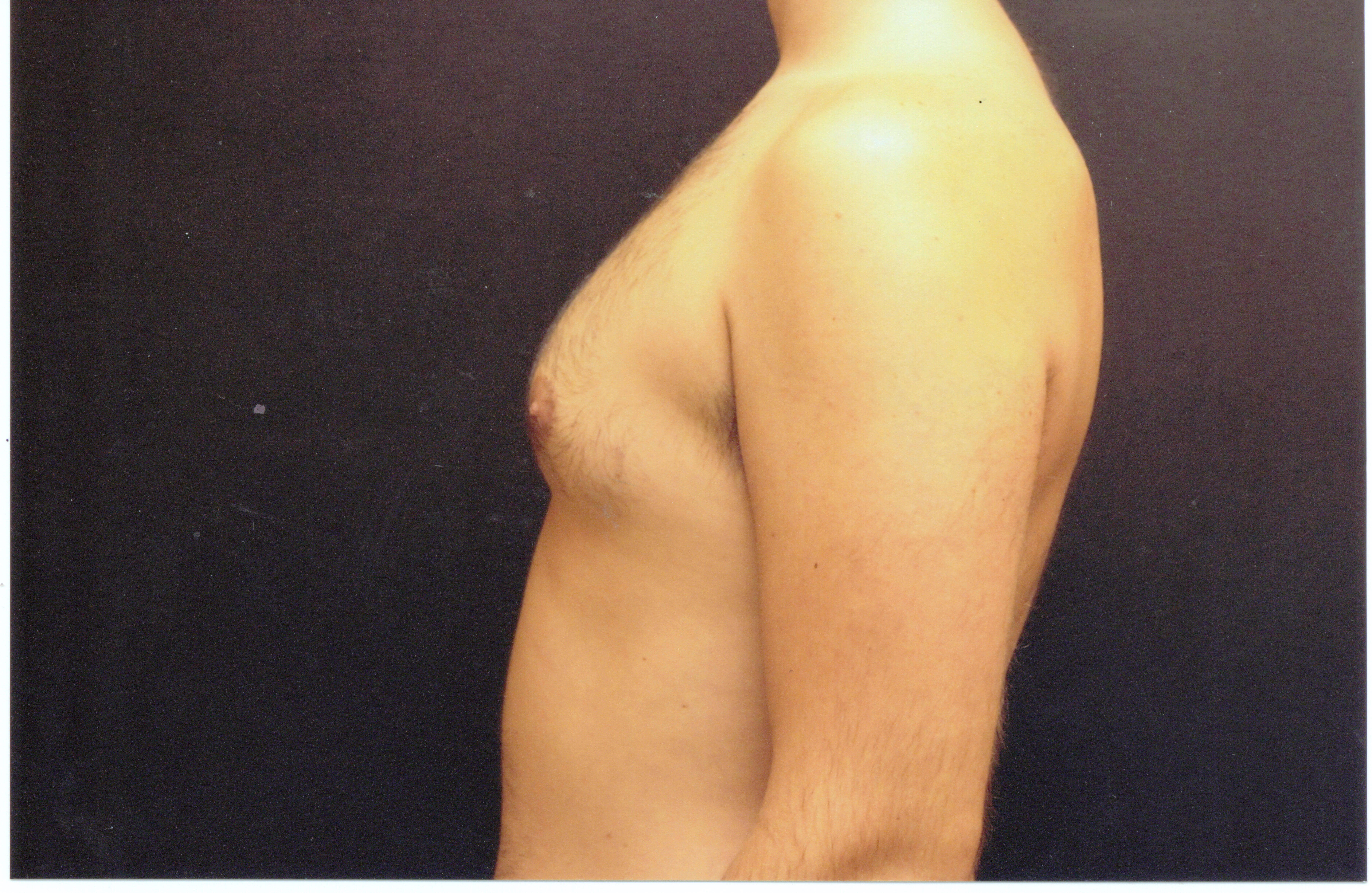 Liposuction chest side view Before