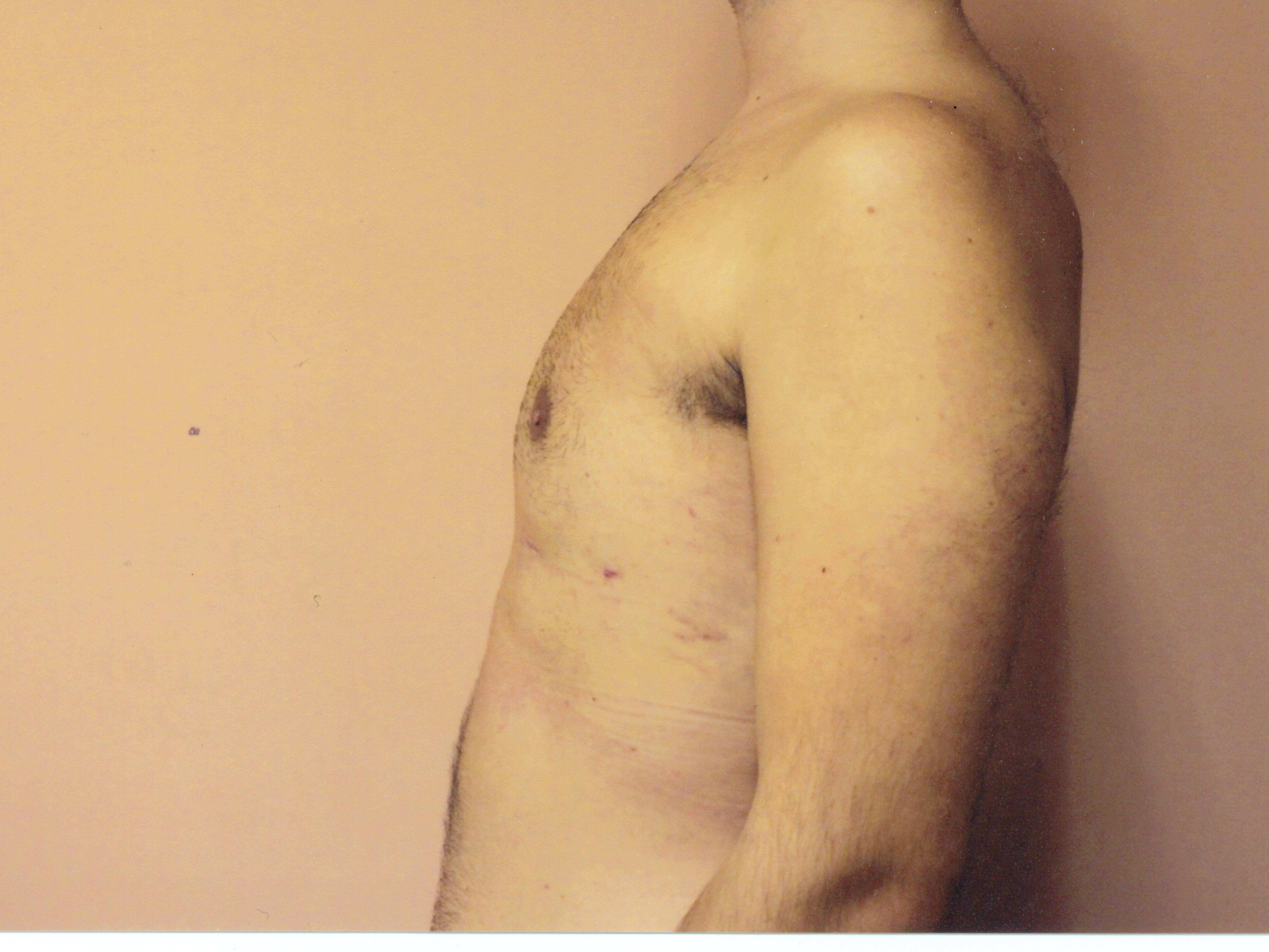 Liposuction chest side view After