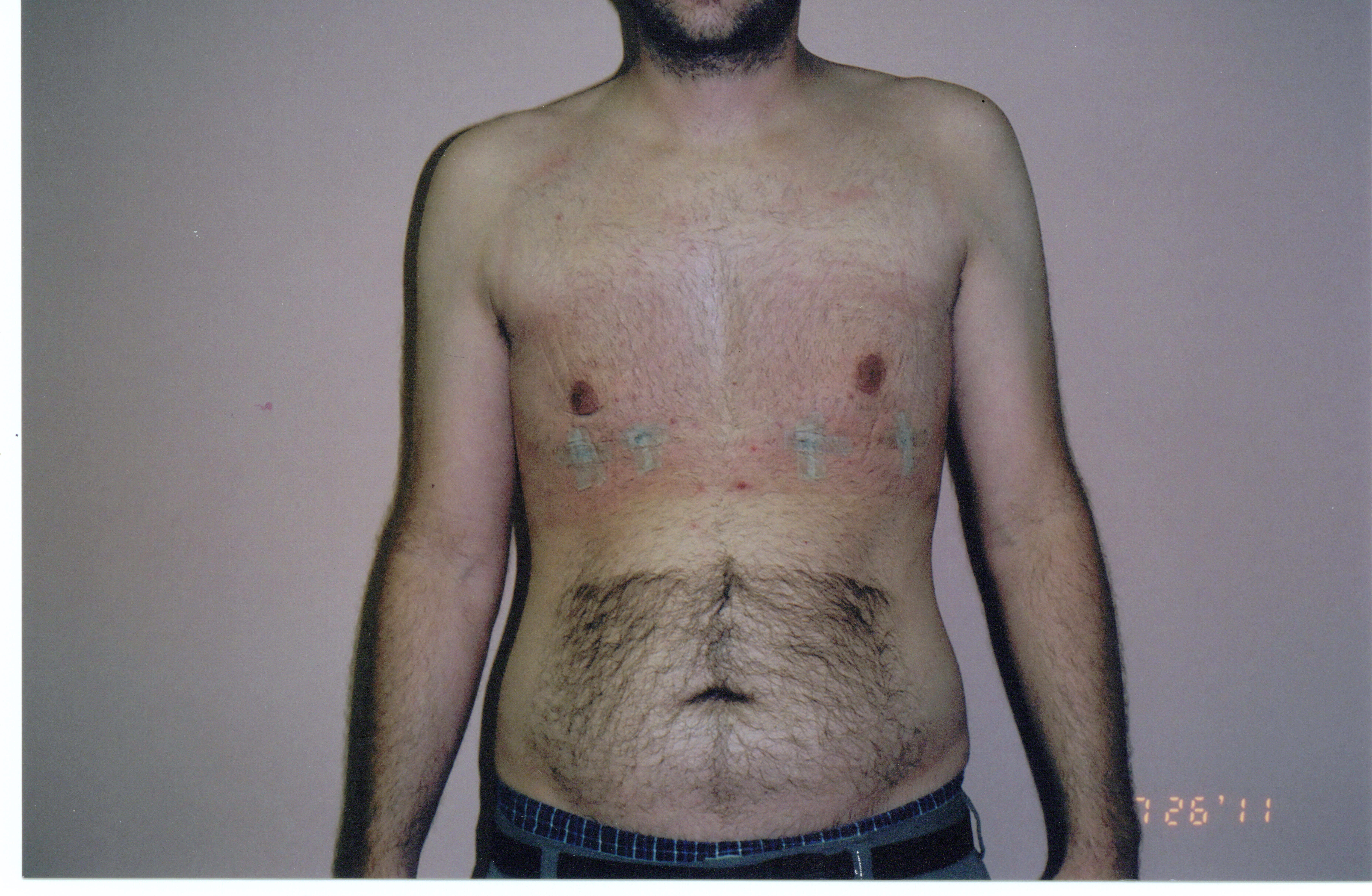 Liposuction of chest After
