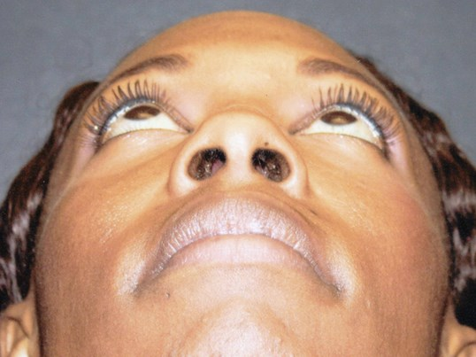 Rhinoplasty up view Before