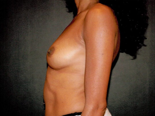 Liposuction side view Before
