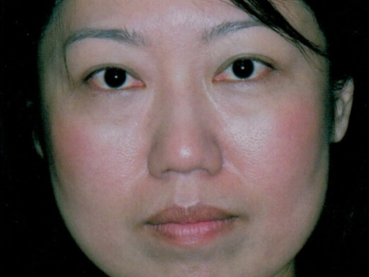 Asian eyelid lift Before