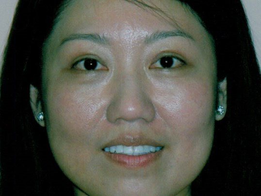 Asian eyelid lift After