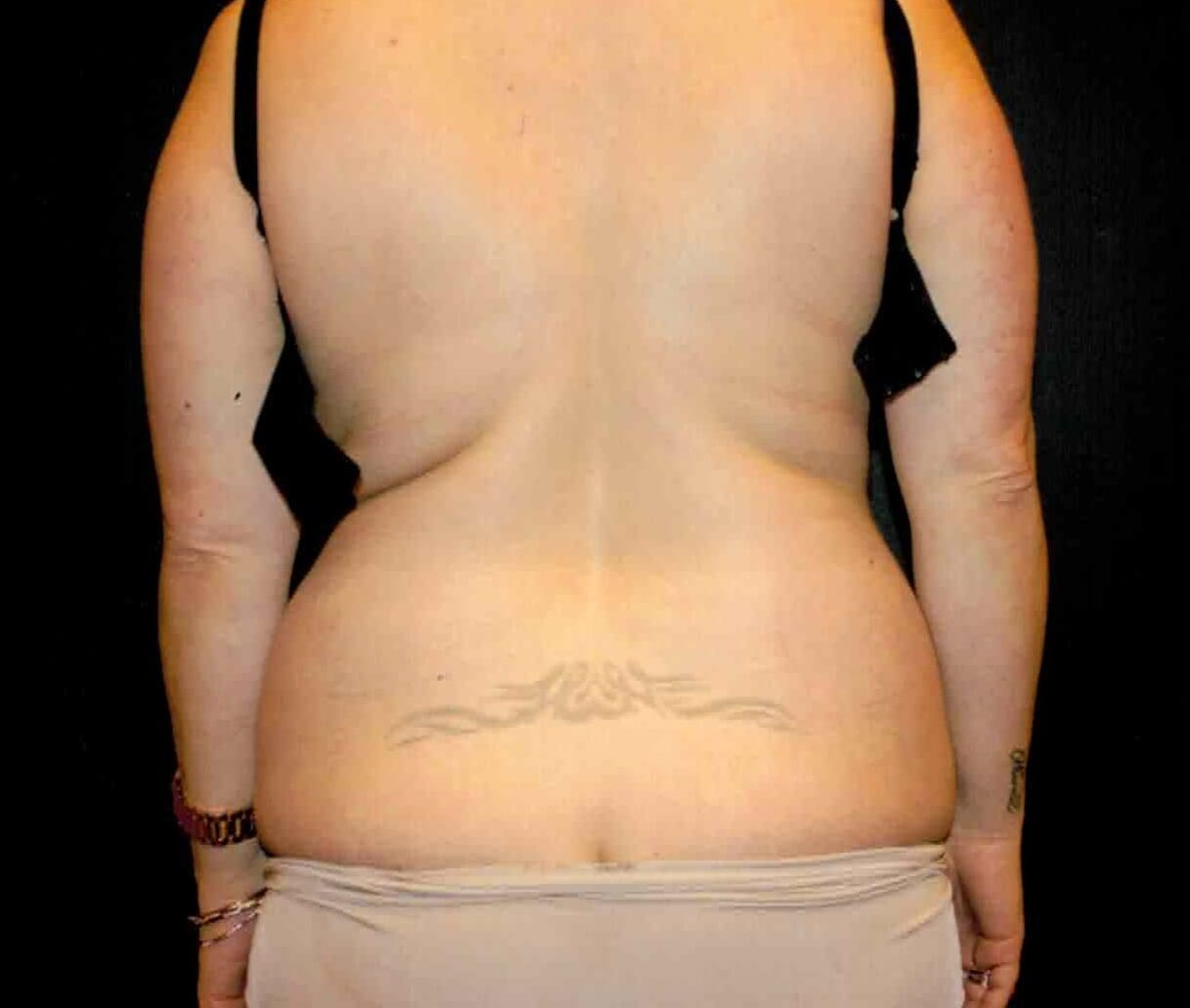Liposuction of back Before