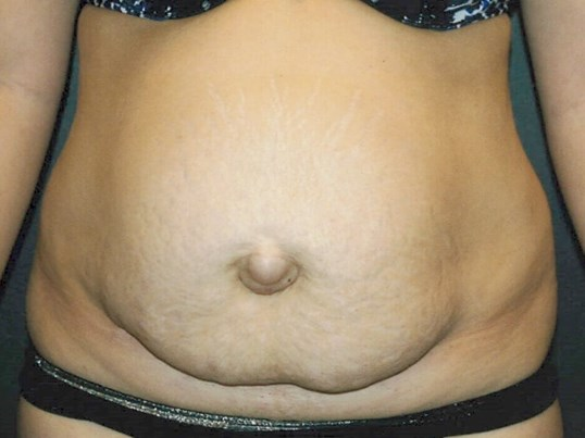 Tummy Tuck - front view Before